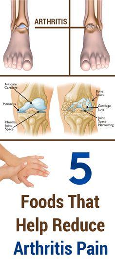 5 Foods That Help Reduce Arthritis Pain Arthritis Diet, Rheumatoid Arthritis Treatment, Arthritis Pain Relief, Types Of Arthritis, Natural Remedies For Arthritis, Bone Health, Medical Care, Health And Wellbeing, How To Relieve Stress