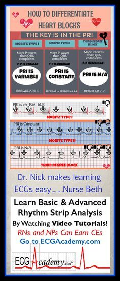 Earn ECG Certificate for Nurses