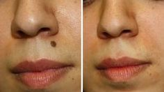 Simple and Effective Techniques to Get rid of Skin Moles