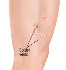 Most women have a headache because they give bad appearance of their legs! Spider veins arise as vascular mesh under the skin, as a rule, they have a red or purple color.