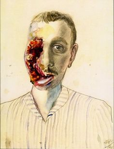 Wounded Veteran. Otto Dix (1891-1979) was a German painter and printmaker, noted for his ruthless and harshly realistic depictions of Weimar society and the brutality of war.