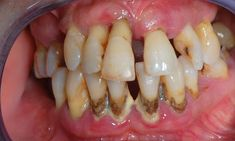 The medical term periodontitis is a gum infection which affects the bone and ligament supporting our teeth. Find out what causes periodontitis in detail.... http://www.natural-health-news.com/periodontitis-inflammation-of-gums  When it comes to additional superior systems just for your house proceed to http://atcemsce.org/waterpik-ultra-water-flosser-wp-100/