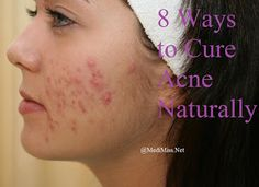 8 Ways to Cure Acne Naturally ~ MediMiss How to cure acne: http://acnenotanymore.com/