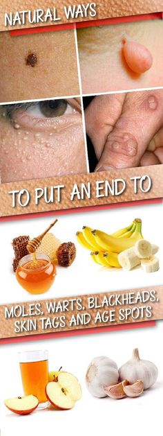 #beauty #skincare #health #warts #moles #skintags #agespots #naturalremedie #recipe