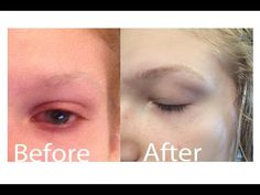 How To Grow Out Very Sparse Eyebrows Quickly - YouTube