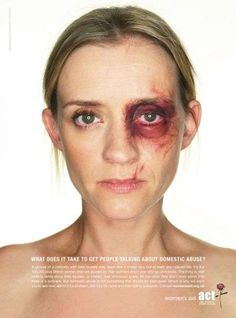 - To raise awareness for domestic violence, the new Women's Aid campaign features photoshopped pictures of UK celebs. The celebrities have been alte. Skinny Celebrities, Celebs, Digital Makeover, Sfx Makeup, Creative Advertising, Domestic Violence, Art Plastique, Portraits, Human Rights