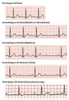Learn the seven steps to interpret an ECG with help of an analysis algorithm and test your knowledge by taking the ECG quiz. Heart rate ✓, heart rhythm ✓, electrical heart axis ✓, the pr interval ✓, repolarization ✓. Read more here! Cardiac Nursing, Nursing Mnemonics, Ekg Interpretation, Nursing School Notes, Emergency Medicine, Cardio, Heart Rate, Student Nurse, Biology