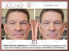www.jouveskin.com/steph Contact me for 30% off your first order!!  Results in only 2 mins.  permanent skin repair showing in 4-6 weeks.  italychic78@aol.com #skincare #antiaging #wrinkles #toxinfree #chemicalfree