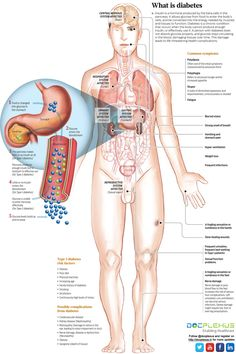 Exciting info-graphic about diabetic & its symptoms. #Docplexus