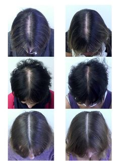 This supplement combo reduced hair loss in 90% of the women who took it: