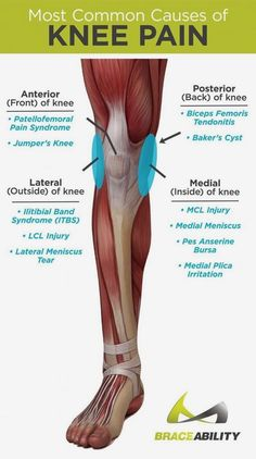 Do you or does someone you know have knee pain? The first step to relieving knee pain is knowing EXACTLY where your pain is! Anterior (front) posterior (back) lateral (outside) and medial (inside) knee pain are the four most common areas of knee injuri Mcl Injury, Baker's Cyst, Knee Pain Exercises, Knee Physical Therapy Exercises, Physical Exercise, Orthopedic Physical Therapy, Physical Therapy Student, It Band Stretches, Hip Flexor Exercises