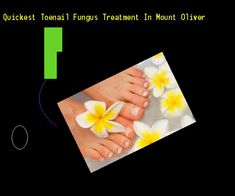 Quickest toenail fungus treatment in mount oliver - Nail Fungus Remedy. You have nothing to lose! Visit Site Now