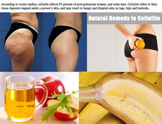 2 Perfectly Working Remedy to Cellulite