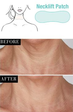 How to Remove Unwanted Hair Forever in Just 5 Minutes - Home Health Magazine Underarm Hair Removal, Electrolysis Hair Removal, Hair Removal Diy, Hair Removal Methods, Hair Removal Cream, Brown Spots On Skin, Skin Spots, Brown Skin, Dark Spots