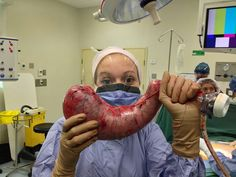 This is how much of stomach removed with gastric sleeve.