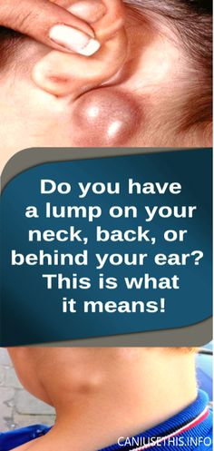 Do You Have a Lump on Your Neck,Back,or Behind Your Ear This Is What It Means....