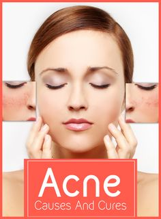 Acne – Causes And Cures