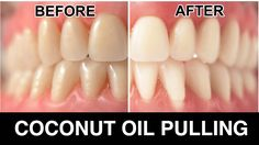 My dentist recommended this and it really worked. Would you try it?