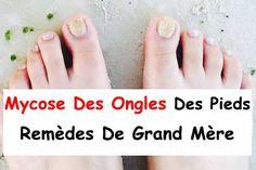 Feet Care, Wellness, Healthy Drinks, Pedicure, Health Tips, Beauty Hacks, Skin Care, Cosmetics, How To Plan