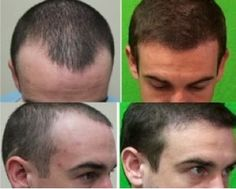 Know the Advantages of FUE Hair Transplant Method. Follicular Unit Extraction, popularly known as FUE involves extraction of hair from a donor area on the head for improving the health and quality of the transplanted hair.