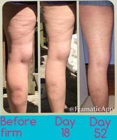 I love how soft and tight my legs feel after 2 weeks! I can't wait to post my 30 day result photos! Nerium is something that I absolutely love- I'd tell you about the purple shampoo I love for my blonde hair and I'm definitley going to tell you about how amazing this product and company is. What questions do you have? SierraPlayer.Nerium.com