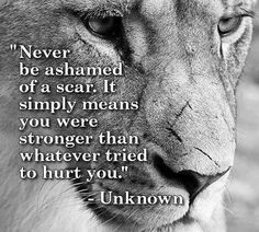 Never be ashamed of a scar. It simply means that you were stronger than whatever tried to hurt you~unknown