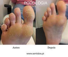 PODOLOGIA na SENTIDOS Pedicure, Pie, Nails, Jewel Nails, Beauty Bar, Healthy, Torte, Finger Nails, Pedicures