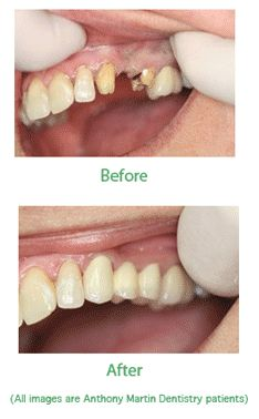 Dental Bridges to fix missing teeth or gaps