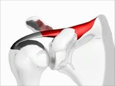 The shoulder injury that anyone could get if they're not careful.