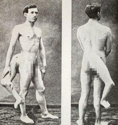 14 Vintage Freak Show Performers - Creepy Gallery