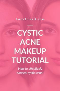 If you have cystic acne, then you should know more about it and how it forms. Cystic acne gets birth from nodule acne and its enlargement. It is the result of severe skin inflammation and it gets worse when the nodule acne swelled up. Cystic Acne Remedies, Cystic Acne Treatment, Nodule Acne, Acne Makeup, Beauty Hacks For Teens, Acne Causes, Internet, Hormonal Acne, Acne Prone Skin