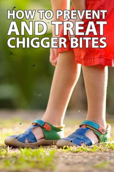 In this post, we are going to go over almost 50 ways to prevent and treat chigger bites. If you've ever experienced chigger bites I'm sure you know how horrible they are. I want to give you all the options there are to prevent and treat chigger bites so you can look and find something that will help you. Back To Basics, Health And Beauty, The Help, Medical, Weight Loss, Treats, Homesteading, Bugs, Prepping