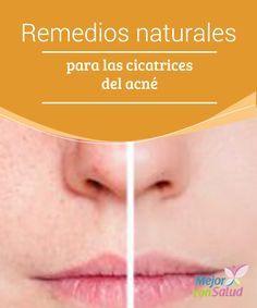 Remedios naturales para las cicatrices del acné  Todos hemos sufrido las incómodas molestias del acné en nuestra juventud, están asociados a los cambios hormonales y afectan a la estética de nuestro rostro.