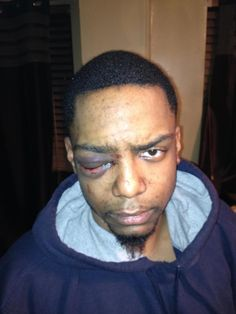 EXCLUSIVE: Jewish security patrol trio accused of beating gay black man likely to avoid prison