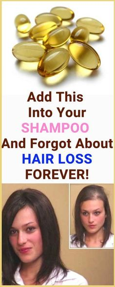She Added This Into Her SHAMPOO And Forgot About HAIR LOSS FOREVER! She Now Recommends Her Trick To Everyone! » Plain Live