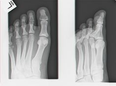 Radiology Quizzes from http://www.ndt-ed.org/EducationResources/CommunityCollege/Radiography/Quizzes/RTQuizzes.htm Image source: http://commons.m.wikimedia.org/wiki/File:X-ray.jpg