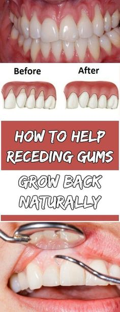 How to Help Receding Gums Grow Back Naturally