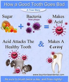 Easy way to explain/ illustrate cavities and how a good tooth goes bad!