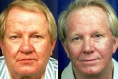 The Non-Invasive Facelift Ace: Face Gymnastics Techniques Can Stop Aging And Get Back Tautened Face Tissue Toning Exercises, Face Exercises, Younger Looking Skin, Look Younger, Mens Fitness, Yoga Fitness, Face Tightening, Facial Yoga, Age Regression