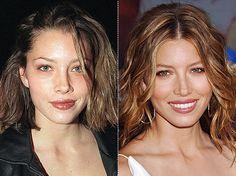 Jessica Biel Nose Job Before & After
