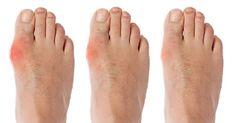 L'alluce valgo è senza dubbio una delle patologie del piede più diffuse. E' una deformazione [Leggi Tutto...]