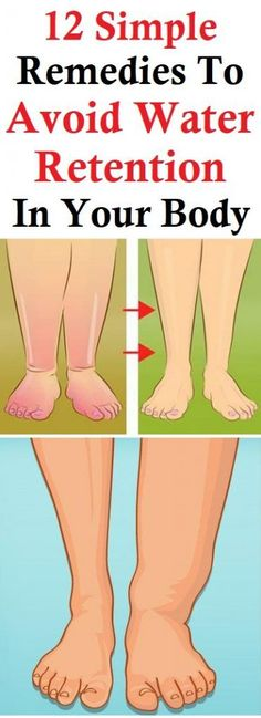 12 Simple Remedies To Avoid Water Retention In Your Body – Emliy Beauty & Health