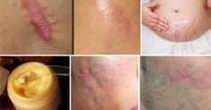 Elimine cicatrizes de qualquer parte do seu corpo em menos de um mês - Receitas da Rede