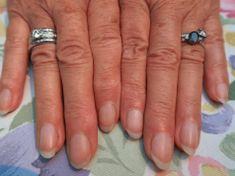 11 varovných signálů o zdraví, které vysílají vaše nehty