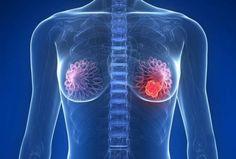 Un estudio realizado en 23 centros españoles declara que el riesgo de padecer de cáncer de mama aumenta en un 71% en mujeres sedentarias. Dicho estudio ha tomado cómo muestra a más de 1.000 pacientes y se ha publicado en Gynecologic Oncology, sus autores mencionan que la actividad en mujeres puede reducir el 13,8% de los casos.