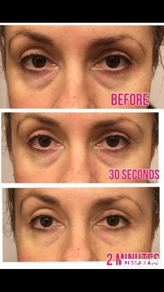 Want to get rid of saddle bags, fine lines and wrinkles around eyes, dark circles...instantly and long term? Nerium's NEW eye serum!!! Tylerhughes.nerium.com