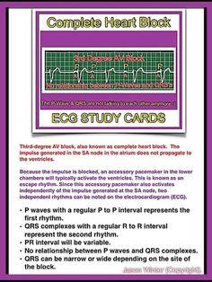 ECG - Complete Heart Block