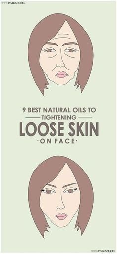 Psoriasis Diet - Instead of spending time money on useless anti-aging treatment, begin using these oils for skin tightening on a regular basis say goodbye to loose skin. Natural Oils For Skin, Natural Skin Care, Natural Beauty, Natural Makeup, Best Natural Face Moisturizer, Best Oil For Skin, Tighten Loose Skin, Tighten Facial Skin, Piel Natural