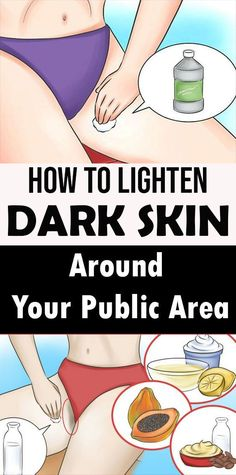 How to lighten dark skin on Your Public Area - Care - Skin care , beauty ideas and skin care tips Combination Skin Care, Skin Spots, Private Parts, Healthy Skin Care, Alternative Health, Beauty Care, Beauty Hacks, Dark Skin, Good Skin