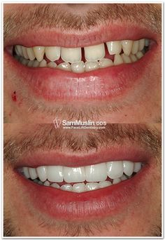 Porcelain Veneers widen smile and fill gaps close up